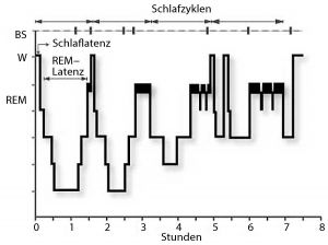 Normal sleep profile based on the classification (Rechtschaffen&Kales) of 900 30-second epochs.